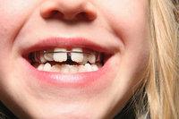 Fehlstellung - Fehlstellung der Zähne