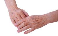 Fleck - Altersbedingte Flecke auf der Haut