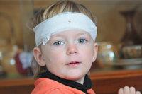 Kopfverletzung - Kind mit Kopfverletzung