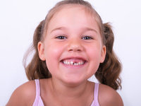 Lücke - Lücke in der oberen Zahnreihe