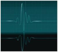 Pulsschlag - Kurve, die Pulsschläge zeigt