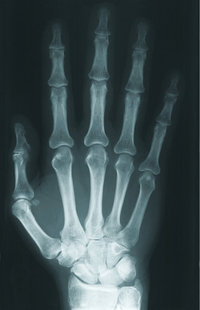Röntgenbild - Das Röntgenbild einer Hand