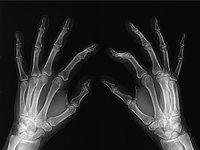 Schirmbild - Schirmbild eines Händepaars