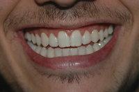 Vorderzahn - Gebiss eines Mannes mit Vorderzähnen